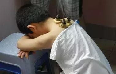 小孩子用艾灸熏艾柱灸的功效