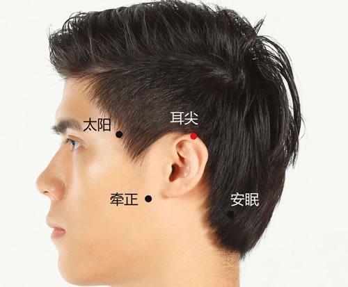 耳尖穴准确穴位图和作用资料