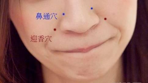 过敏性鼻炎艾灸这几个穴位,艾灸鼻炎的方法你要