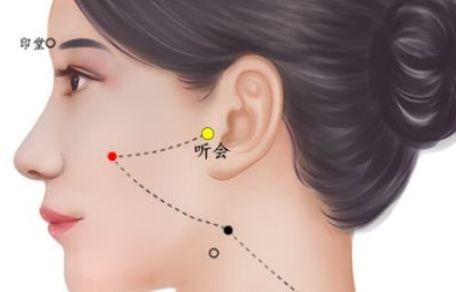 耳鸣失聪适合艾灸的穴位图
